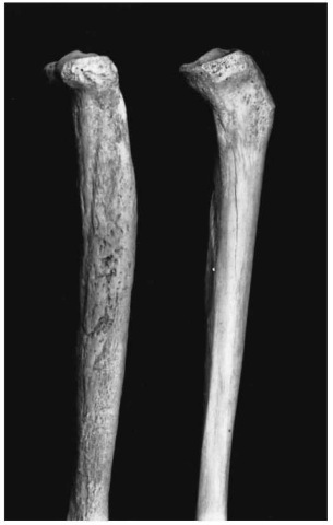 Syphilitic lesions on a tibia (Pretoria skeletal collection). Left, diseased tibia; right, normal tibia. Note the periostitis and bowing of the affected bone.