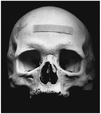 Forensic case with possible leprosy. Note the deformity of the nose, and the resorption of the alveolar bone resulting in antemortem loss of the upper central incisors.