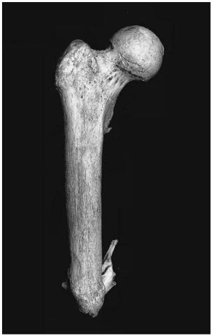 Amputated femur (Pretoria skeletal collection).