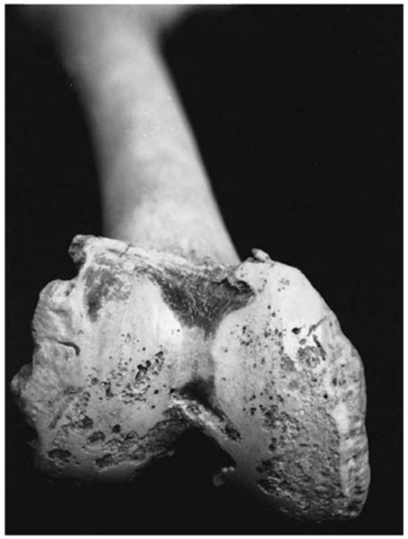 Eburnation of distal femoral joint surface (Pretoria skeletal collection).