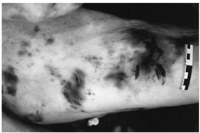 Patterned contusions from kicking to the thigh (partly in combination with curved abrasions corresponding to the front part of the perpetrator's shoe).