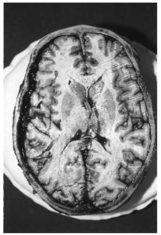 Acute subdural hemorrhage. The unilateral space-occupying lesion has slightly shifted the midline of the brain to the opposite side.
