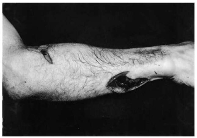 Irregular stab wounds on the dorsal and ulnar aspect of the right forearm: one of the stab wounds is extended by a superficial incision, the other one is V-shaped due to twisting of the blade. The weapon used by the assailant was a survival knife.