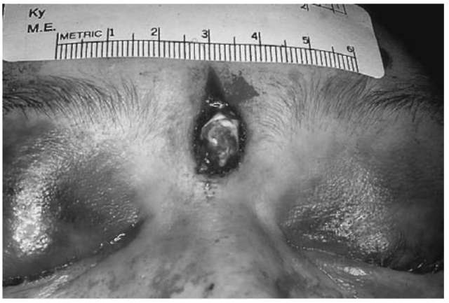The contact wound will exhibit triangular shaped tears of the skin. These stellate tears are the result of injection of hot gases beneath the skin. These gases will cause the skin to rip and tear in this characteristic fashion.