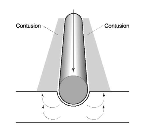 A diagrammatic representation of the pathophysiology associated with blunt force impact on a rounded linear object. The blood directly beneath the rounded linear object is forced up to the side and the increased pressure under vessels causes the vessels to rupture. The area of central clearing surrounded by two parallel lines is pathognomonic for impact with a rounded linear object.