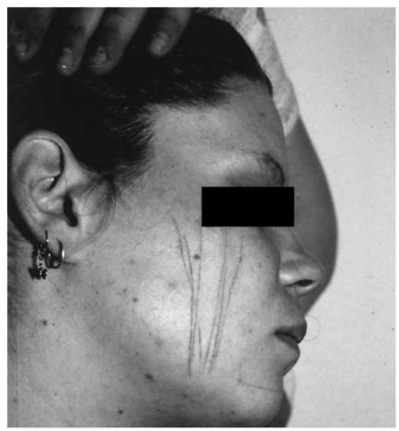 Group of mostly parallel skin lesions inflicted on the right cheek with nail scissors (23-year-old woman, who falsely claimed to have been the victim of a sexual assault; actually she wanted to arouse the attention of her unfaithful husband).