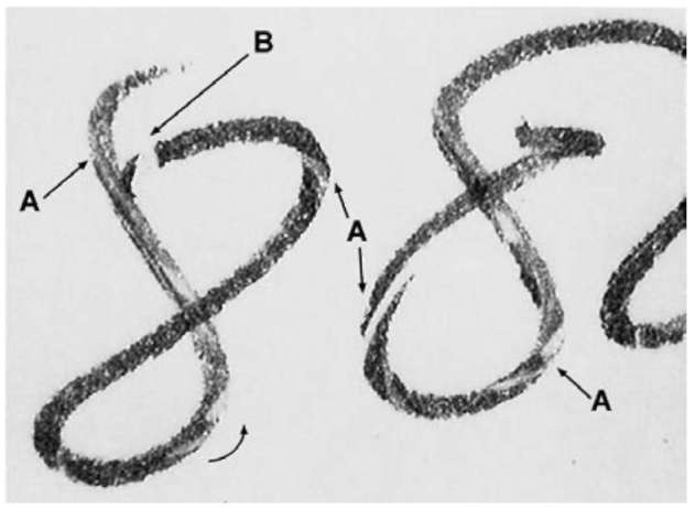 Ball-point pen writings showing (A) striations and (B) reduced ink start. Arrows indicate direction of pen movement.