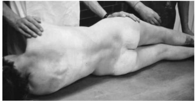 Hypostasis in a body that has been lying on the back for 12 h.