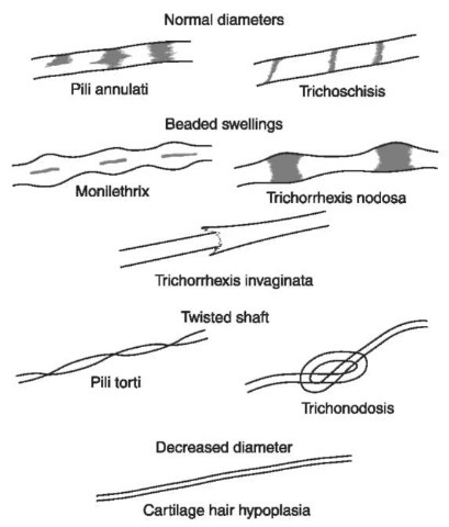 Hair shaft abnormalities. Sometimes human hair grows in abnormal ways due to disease. These hairs, when viewed microscopically, sometimes have normal diameters with crossway markings, beaded swellings, twisted shafts or decreased diameters.