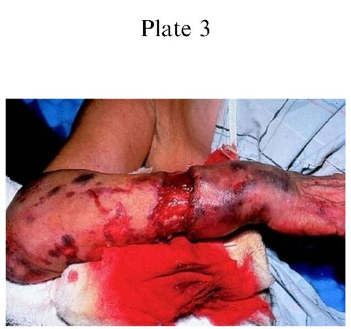 Plate 3 ACCIDENT INVESTIGATION/Driver Versus Passenger in Motor Vehicle Collisions A degloving injury with underlying fracture. This patient sustained an open fracture, with degloving of the forearm, secondary to contact with the deploying air bag. Matching this injury and the blood transferred to the air bag would assist in identifying the role of this patient.