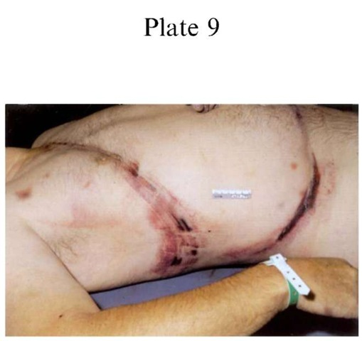 Plate 9 CAUSES OF DEATH/Traffic Deaths Typical lap/sash passenger distribution of bruising and abrasion