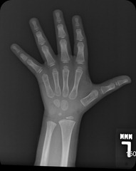 6 years old hand xray 4-8-2011