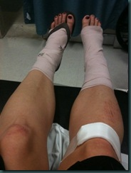 legs[2]