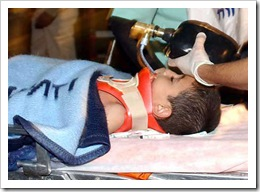 gaza-attack-wounded-child-2-2