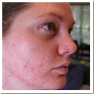 acne-facial-290x290