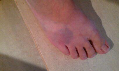 reddish spots on feet