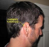 Dtubercule1