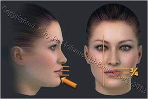 ideal lip