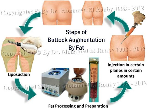 buttock augmentation by fat injection