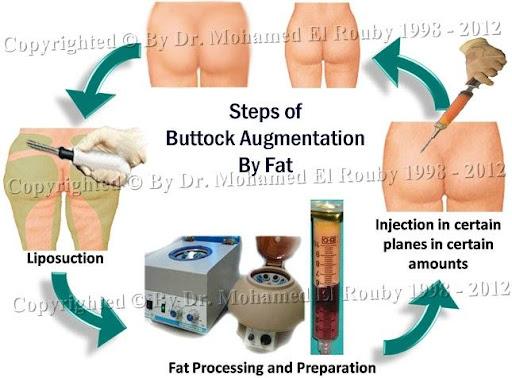 خطوات شفط و حقن الدهون للأرداف