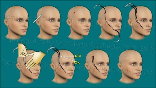 face lift by Thread