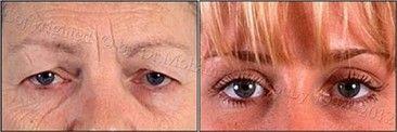 تجميل جفون العين
