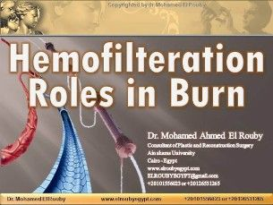 hemofilteration in burn