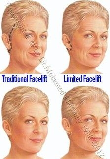 types of facelift