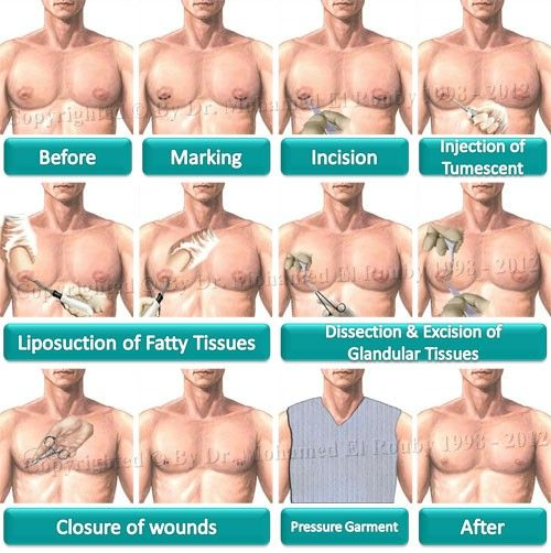 steps of gynecomastia