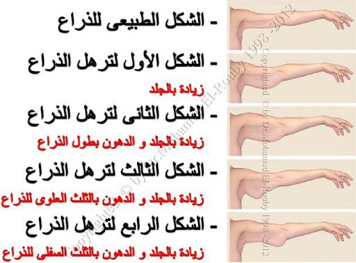 درجات ترهل الذراع