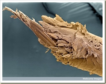 Split End of Human Hair