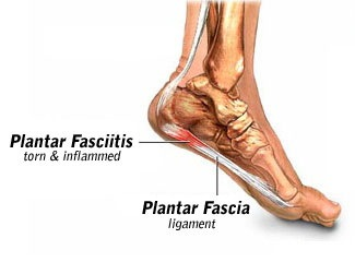 plantar_fasciitis[1]