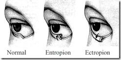 Eyelids-Normal-Entropion-Ectropion