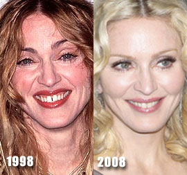 madonna-plastic-surgery-before-and-after-photos-or-pictures-gallery