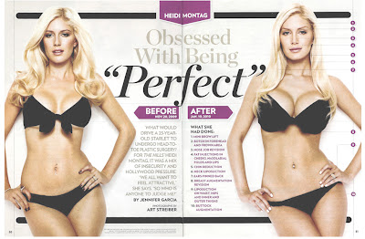 heidi-montags-10-plastic-surgery-before-after-photos-pics