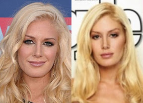heidi-montag-plastic-surgery-before-and-after-photos-pictures-and-youtube-video