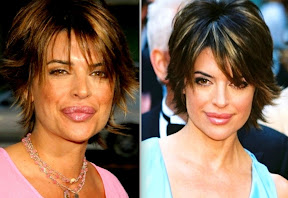 lisa-rinna-lips-before-and-after-plastic-surgery-photos-lips-reduction-pictures-gallery