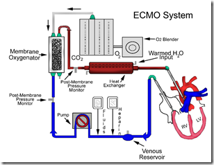 CESAR study: Justification of extracorporeal membrane ...