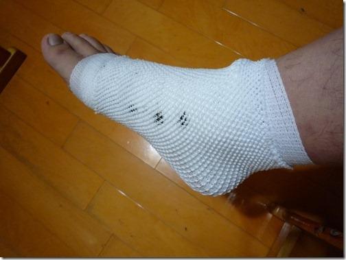 受傷的腳踝