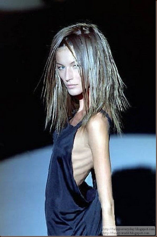 skinny-anorexic-models (6)