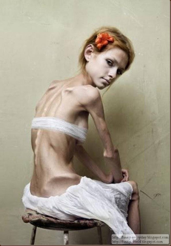 skinny-anorexic-models (7)