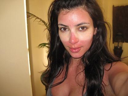 Kim Kardashian Sunburn picture