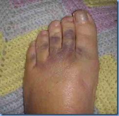0409-Left-Foot