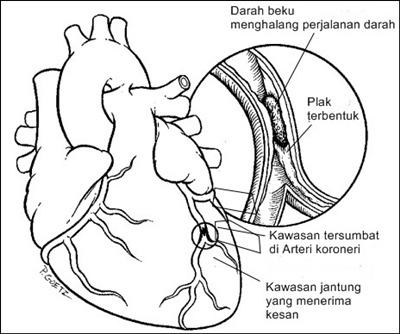 Pembentukan plak pada jantung