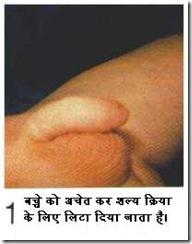 hindicirc1