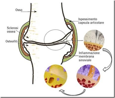 Evoluzione artrosi