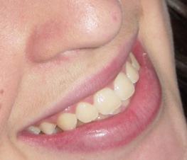 dentes_brancos01