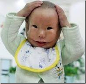 Chinese baby born with mask face 2