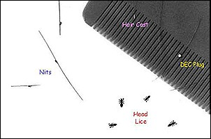 Nits  and Lice