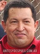 Hugo Chavez,